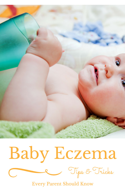 Tips and Tricks for Baby Eczema. Looking for tips and tricks to ease your baby's eczema? A mom of 4 tells you the information passed on to her by a dermatologist. Tips include what lotions were recommended along with detergent for sensitive skin. #eczema #babycare #babyskin #bathtime #FreeToBe #sp #ad